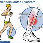 Schienbeinschmerzen vom Joggen