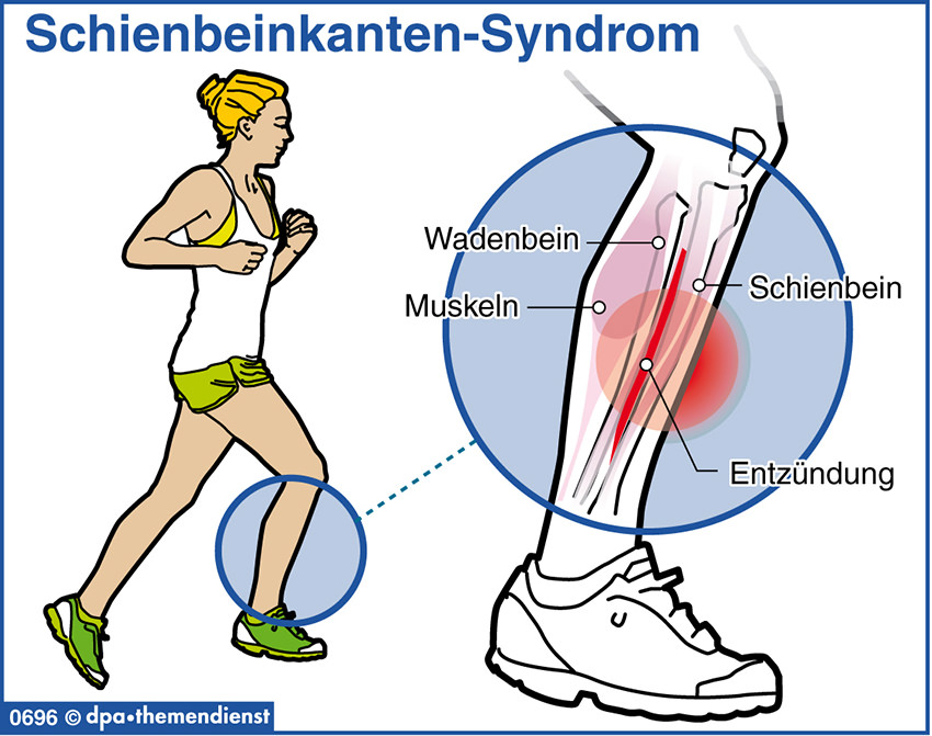 Schienbeinkanten-Syndrom Schmerzen im Schienbein