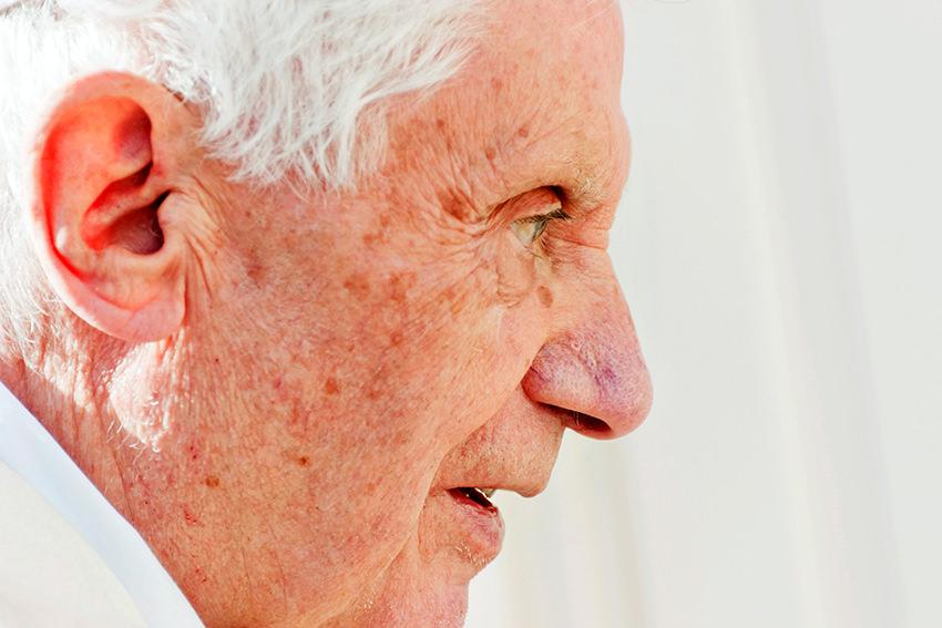 Auch der Papst hat Altersflecken © picture alliance/dpa Fotografia