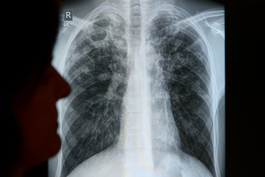 Was Bedeuten Weiße Flecken Auf Der Lunge
