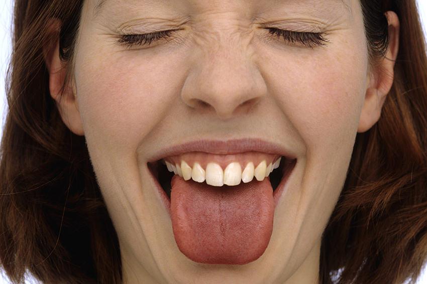 Zungenbelag brauner Zungenbelag: verhindern