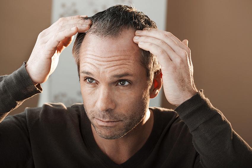 7 Tipps, wie Männer mit Haarverlust umgehen können